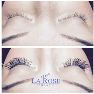 La Rose Laser and Spa