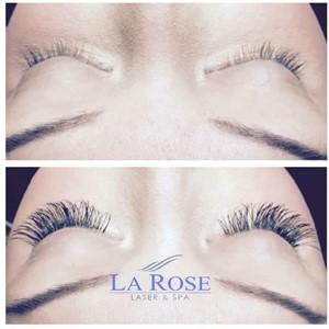 La Rose Laser and Spa