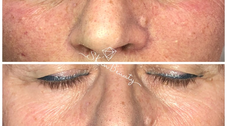 Microneedling in Toronto